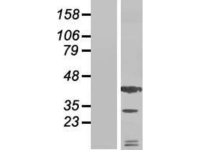CXCL12 / SDF-1 Overexpression Lysate