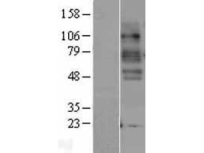 SLC6A4/5-HTTLPR/Serotonin transporter Overexpression Lysate