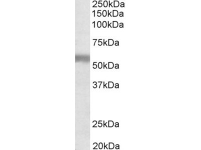 Natriuretic Peptide Receptor C Antibody