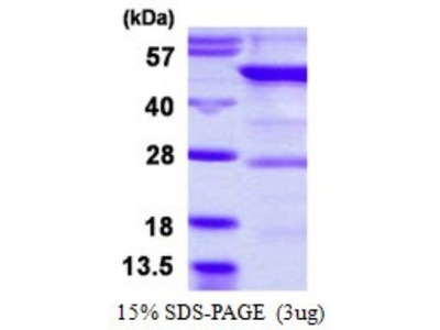 YARS2 Protein