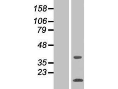 SNAPC5 Overexpression Lysate