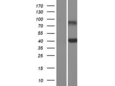 CLEC10A / CD301 Overexpression Lysate