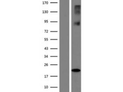SLC38A6 Overexpression Lysate