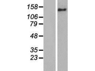 BRIP1 / FANCJ Overexpression Lysate