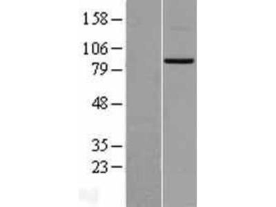 Mitofusin 2 Overexpression Lysate