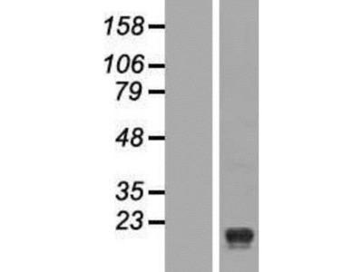 Signal Peptide Peptidase Overexpression Lysate (Native)