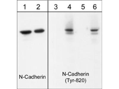N-Cadherin (Tyr-820), phospho-specific Antibody