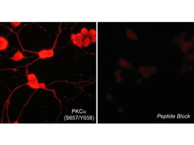 PKCα (Ser-657/Tyr-658), phospho-specific Antibody