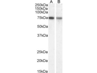 Choline Acetyltransferase/ChAT Antibody