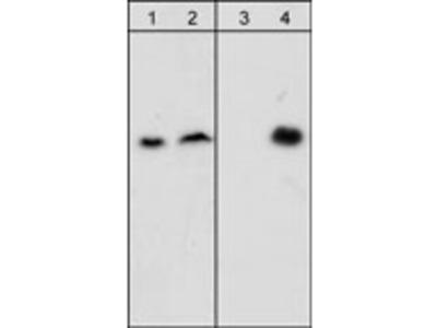 β-Dystroglycan (Tyr-892), phospho-specific Antibody