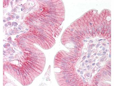 beta Catenin Antibody