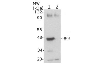 Anti- HPR ; hydroxypyruvate reductase (peroxisomal matrix marker)