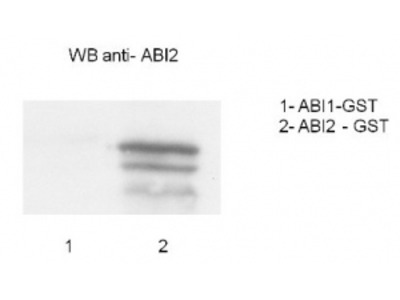 Anti- ABI2 ; abscisic acid insensitive 2