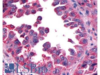 CALCRL / CGRP Receptor Antibody
