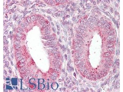 TRXR1 / TXNRD1 Antibody