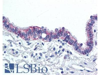 IL6 / Interleukin 6 Antibody