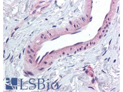 KCNMA1 / BK Antibody