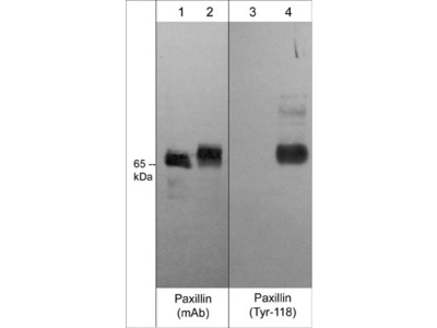 Paxillin Phospho-Tyrosine Regulation Antibody Sampler Kit