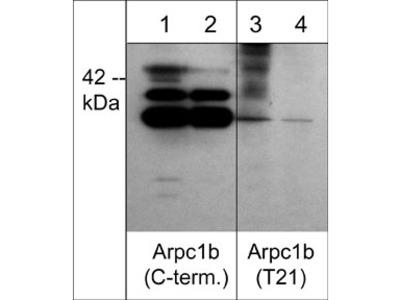 Arpc1b/p41-Arc (Thr-21), phospho-specific Antibody