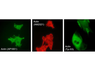 Actin Phospho-Regulation Immunocytochemistry Kit