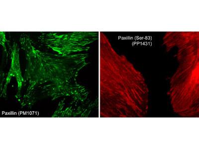 Paxillin Phospho-Regulation Immunocytochemistry Kit