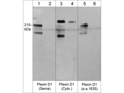 Plexin A1, B1, and D1 Receptors Antibody Sampler Kit