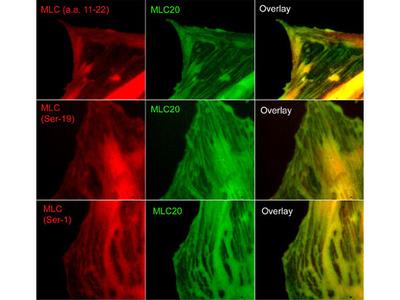 Myosin Light Chain Phospho-Regulation Immunocytochemistry Kit