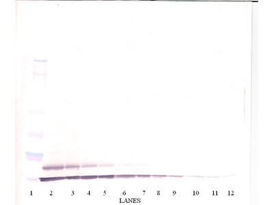 Tarc Antibody