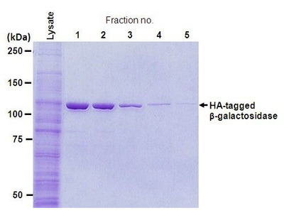 HA-tagged Protein Purification Gel