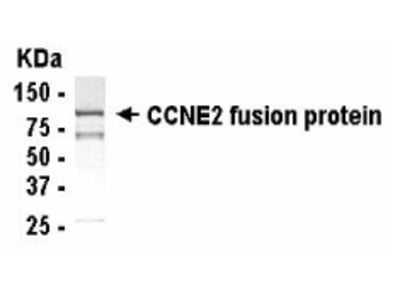 CCNE2 Antibody