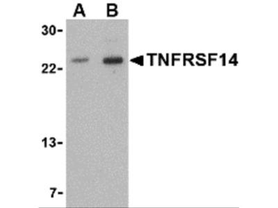 TNFRSF14 Antibody