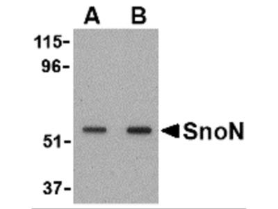 SnoN Antibody