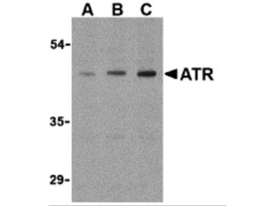 ATR Antibody
