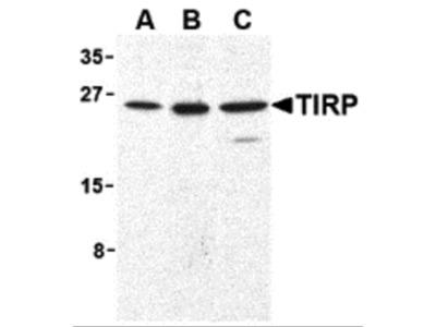 TIRP Antibody