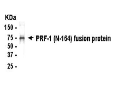 ZNF395 Antibody