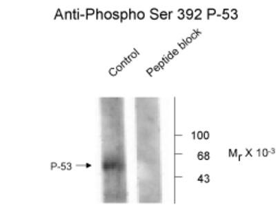 NMDA NR1 Antibody