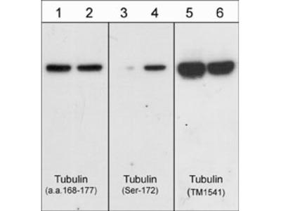 β-Tubulin Antibody
