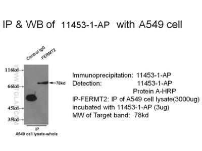 Kindlin 2 antibody - KD/KO Validated