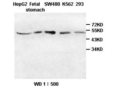 HIP/Hsc70-interacting protein Antibody