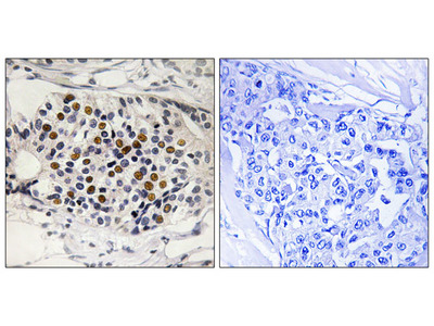 p16-INK4a (Phospho-Ser152) Antibody