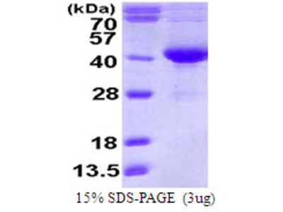 SDSL, 1-329aa, Human, His tag, E Coli