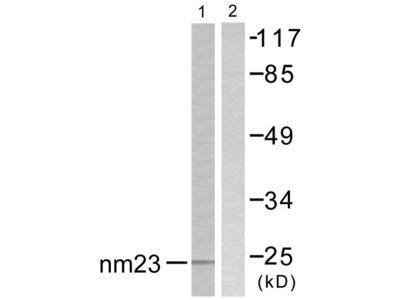 NM23 Antibody