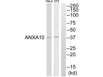 ANXA10 Antibody