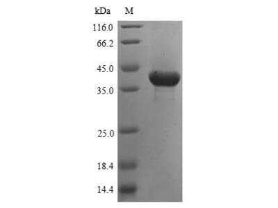 Recombinant Human Aspartoacylase (ASPA)