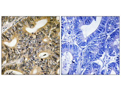 4E-BP1 (Phospho-Thr70) Antibody