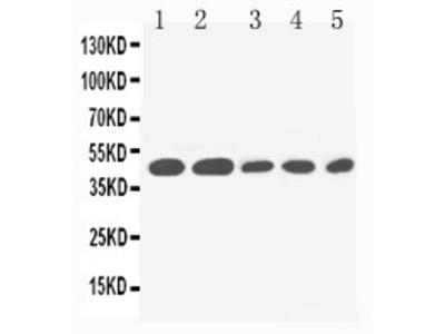 Anti-IL2 Receptor gamma antibody