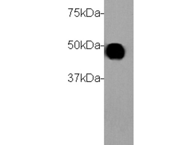 CK-18 Antibody