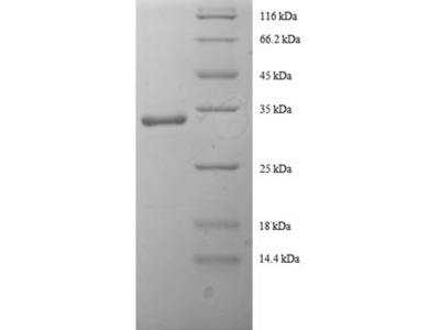 Recombinant human Tricarboxylate transport protein