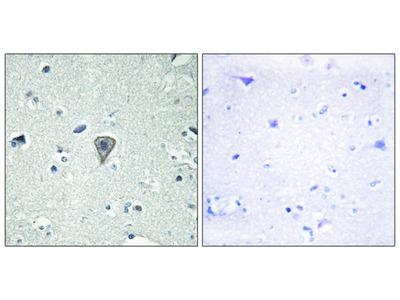 ETBR2 Antibody