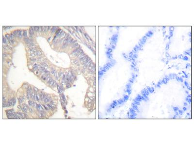 Gastrin Antibody